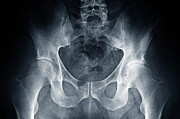 X-ray Image Art - Hip X-ray by Sami Sarkis