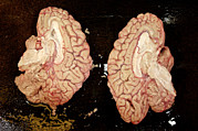 Human Brain Art - Human Brain Dissected In Half by Volker Steger