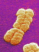 Chromosome Prints - Human Chromosome Pair, Sem Print by Power And Syred
