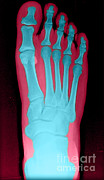 Color Enhanced Framed Prints - Human Foot Framed Print by Medical Body Scans