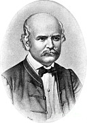Nervous Depression Framed Prints - Ignaz Semmelweis, Hungarian Framed Print by Science Source