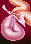 Hernia Prints - Illustration Of A Strangulated Hernia Print by John Bavosi