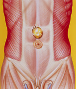 Hernia Prints - Illustration Of An Epigastric (abdominal) Hernia Print by John Bavosi