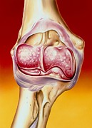 Arthritis Prints - Illustration Of Arthritis In Elbow Joint Print by John Bavosi