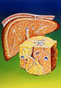 Liver Posters - Illustration Of Septal Cirrhosis Of The Liver Poster by John Bavosi
