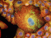 Vaults Posters - Immunofluores. Lm Of Drug-resistant Cancer Cells Poster by Nancy Kedersha