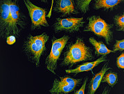 Mitosis Prints - Immunofluorescent Lm: Mitosis In Hela Cancer Cells Print by Nancy Kedersha