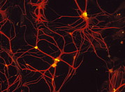 Neuroglia Posters - Immunofluorescent Lm Of Mammalian Brain Astrocytes Poster by Nancy Kedershaucla