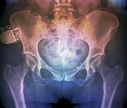 Urology Posters - Incontinence Implant, X-ray Poster by Zephyr