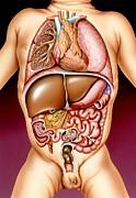 Infantile Digestive Disorders Print by John Bavosi