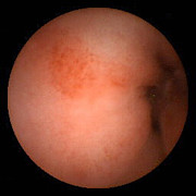 Inflammation Photos - Inflammation Of The Duodenum, Pill Camera by David M. Martin, Md