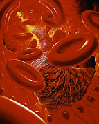 Blood Art - Interior Of Human Blood Vessel Showing A Thrombus by David Giffordkabivitrum Ltd