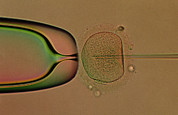 In Vitro Prints - Ivf: Egg Being Injected With Sperm Dna Print by Cc Studio