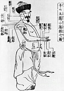 Chinese Characters Framed Prints - Japanese Illustration Of Acupuncture Framed Print by Science Source