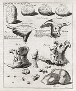 Metabolism Framed Prints - Kidney Stones, 18th Century Framed Print by Middle Temple Library