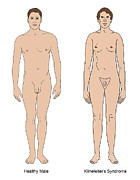 Klinefelters Syndrome & Healthy Male Print by Science Source