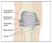 Total Knee Replacement Photos - Knee After Knee Replacement, Artwork by Peter Gardiner