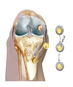 Knee Posters - Knee Cartilage Reconstruction, Artwork Poster by D & L Graphics