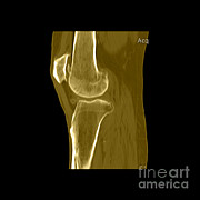 Frontal Bones Framed Prints - Knee Showing Osteoporosis Framed Print by Medical Body Scans