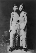 Siamese Photo Prints - Korean Siamese Twins Standing Print by Everett