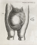 Hernia Prints - Large Hernia, 18th Century Print by Middle Temple Library