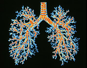 Lungs Posters - Lung Airways Poster by Pasieka