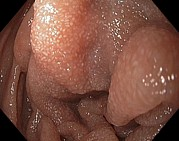 Endoscope View Photos - Lymphangiectasia In The Duodenum by Gastrolab