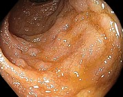 Endoscope View Posters - Lymphoid Hyperplasia In Small Intestine Poster by Gastrolab