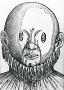 Science Source - Mask For Correcting Crossed Eyes 1583