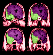 Invasive Prints - Meningioma Print by Medical Body Scans