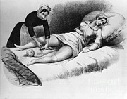 Umbilical Cord Posters - Midwife Cutting Umbilical Cord, 1850 Poster by Science Source
