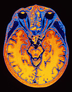 Scan Photos - Mri Brain Scan by Pasieka