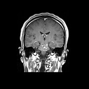 Human Head Art - Mri Brainstem Cavernous Malformations by Medical Body Scans