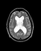 Dementia Prints - Mri Communicating Hydrocephalus Nph Print by Medical Body Scans