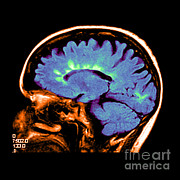 Multiple Sclerosis Photos - Mri Of Multiple Sclerosis by Medical Body Scans