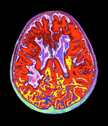 Multiple Sclerosis Photos - Multiple Sclerosis Brain, Mri Scan by Mehau Kulyk