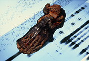 Mummy Prints - Mummified Foot Resting On Dna Autoradiograms Print by Volker Steger