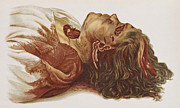 Law Enforcement Art Prints - Murder Victim, 1898 Print by Science Source