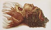 Murder Victim 1898 Print by Science Source