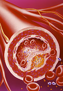 Vascular Condition Posters - Narrowed Artery Due To Cholesterol Poster by John Bavosi