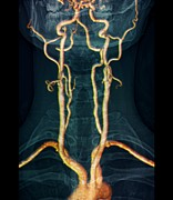 Arteries Framed Prints - Neck Arteries To The Brain, 3d Mri Scan Framed Print by Zephyr