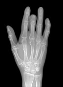 80s Framed Prints - Needle Stuck In Hand, X-ray Framed Print by Du Cane Medical Imaging Ltd