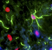 Multiple Sclerosis Photos - Nerve Cell Trauma Response by Riccardo Cassiani-ingoni