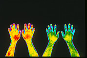 Thermogram Prints - Non-smoker & Smoker Forearms Print by Dr. Arthur Tucker