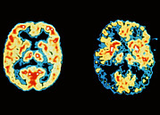 Alzheimers Prints - Normal And Alzheimers Disease Brains Print by Dr Robert Friedland