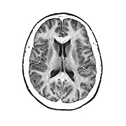 Human Brain Art - Normal Cross Sectional Mri Of The Brain by Medical Body Scans