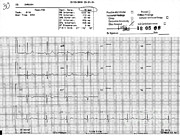 Blood Pressure Posters - Normal Ekg With High Blood Pressure Poster by Science Source