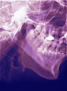 Mandible Posters - Normal Lower Jaw, X-ray Poster by Miriam Maslo