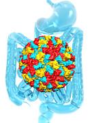 Norwalk Virus Infection Print by Laguna Design