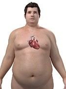 Obese Prints - Obese Mans Heart, Artwork Print by Sciepro